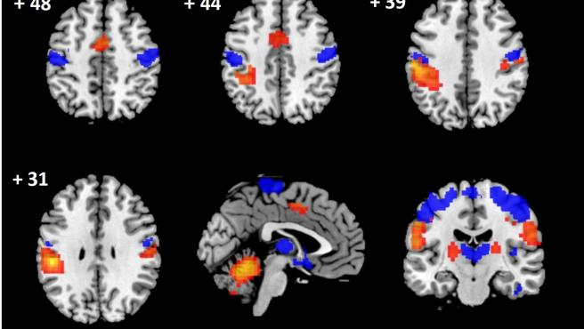 Daños a nivel cerebral en pacientes con compresión prolongada de la médula