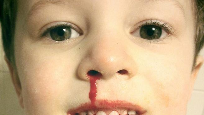Hemorragia nasal en un niño.