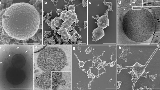 Imagen de la variedad de arquea que ha ofrecido explicación al misterioso salto evolutivo a la vida compleja en la Tierra.