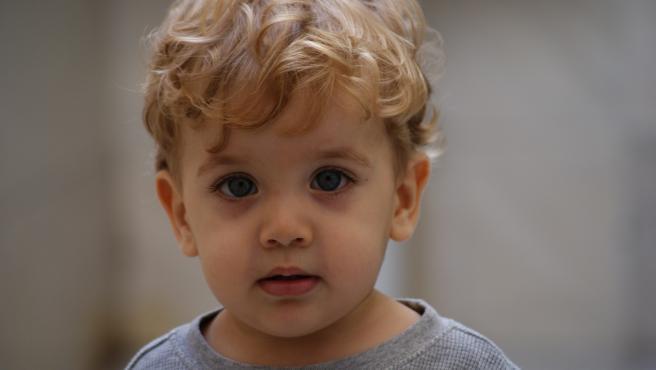 El nistagmo congénito suele aparecer durante las primeras semanas de vida.