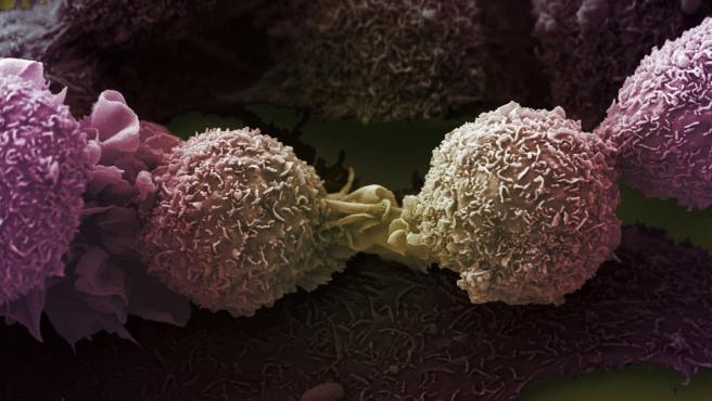 Imagen de microscopía electrónica de células de cáncer de pulmón.