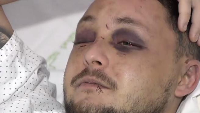Él intentó disuadir al agresor para liberar de la paliza a la chica cuando de repente recibió los puñetazos que lo dejaron inconsciente en el suelo.