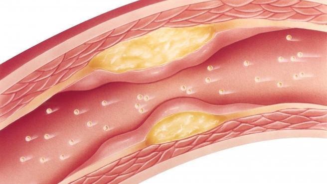 Adherencias en las arterias.