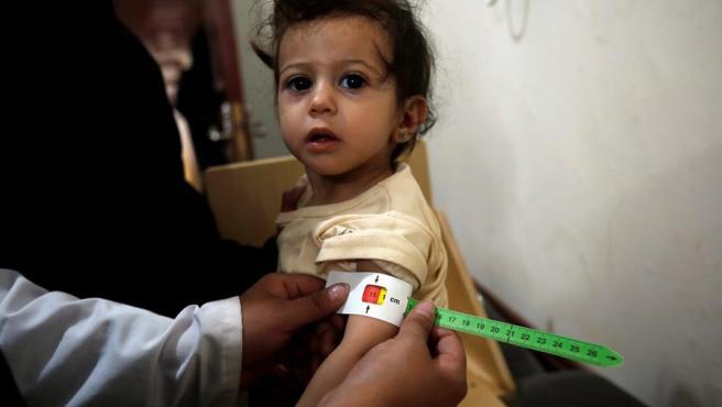 Un niño recibe atención medica en un centro sanitario de Saná, Yemen.