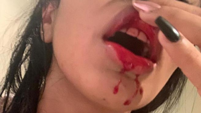 Daniela Cortés, novia de Sebastián Villa, muestra su labio sangrando.