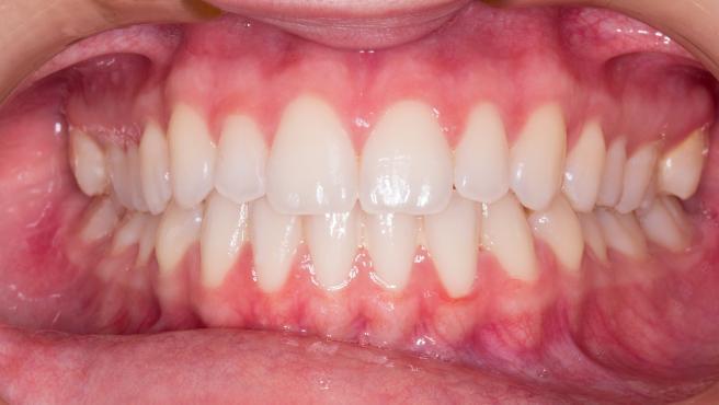 Unas encías sanas son de color rosa pálido y no sangran.