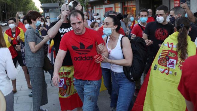 El joven con la mano ensangrentada, tras el altercado durante la cacerolada en Moratalaz.