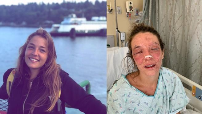 Marta, joven de 24 años que ha perdido la visión por un accidente con sosa caústica