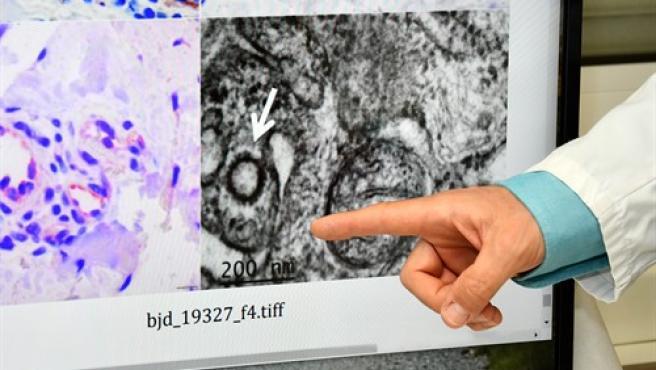 Los investigadores han conseguido 'fotografiar' al virus en la piel.