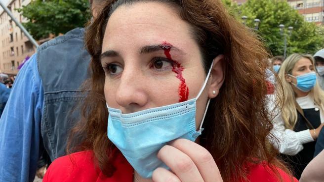 La diputada de Vox Rocío de Meer ha resultado herida al recibir una pedrada antes del mitin del partido en Sestao.