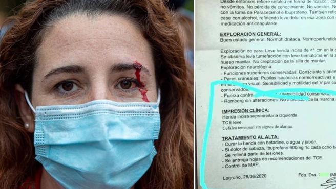 Combo de imágenes de la diputada de Vox Rocío de Meer y el parte médico tras recibir una pedrada.