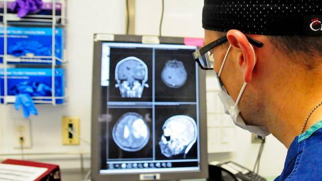 Un neurocirujano estudia la resonancia magnética de un cerebro, en una imagen de archivo.