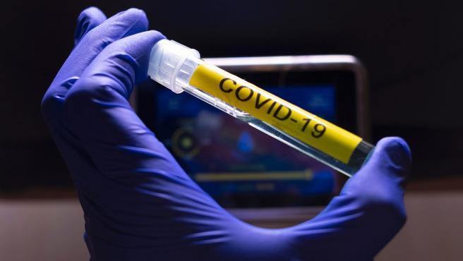 Rovi y Moderna fabricarán en Madrid el llenado y acabado de la vacuna contra el Covid-19. Coronavirus (Foto de ARCHIVO) 27/5/2020