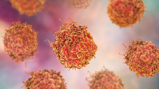 Células cancerosas de próstata.