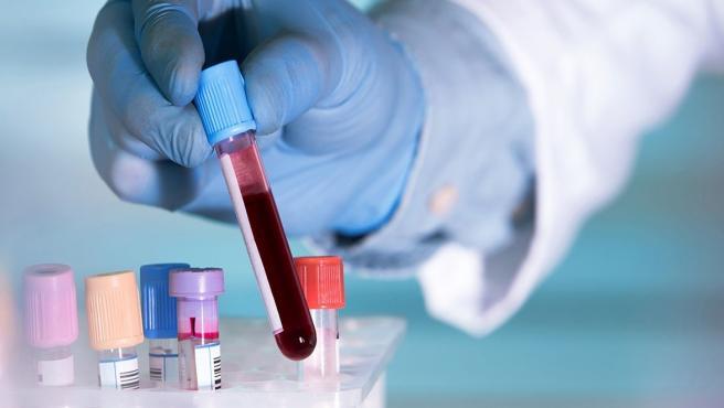 Un simple análisis de sangre basta para detectar positividad por