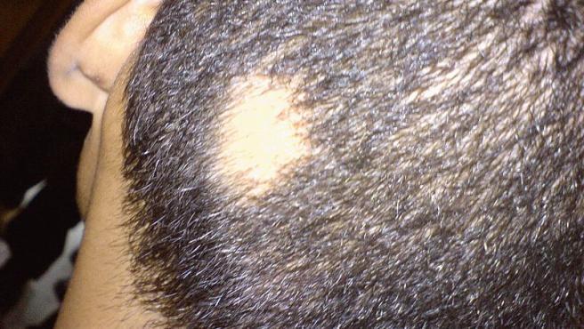 Una mancha irregular sin pelo de alopecia areata. Foto Abbassyma Wikimedia Commons