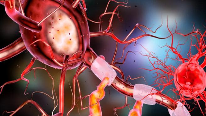 El síndrome de Guillain-Barré ataca al sistema nervioso periférico e impide que los nervios funcionen correctamente