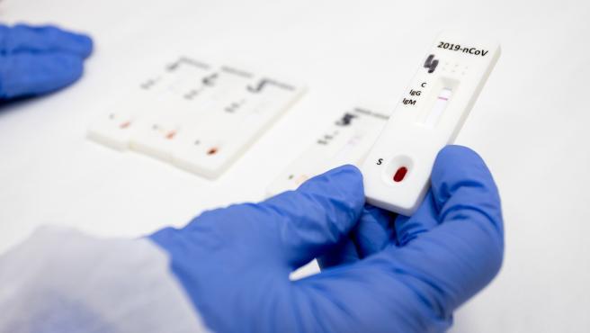 Aragón detecta 456 nuevos casos procedentes de 4.309 PCR.