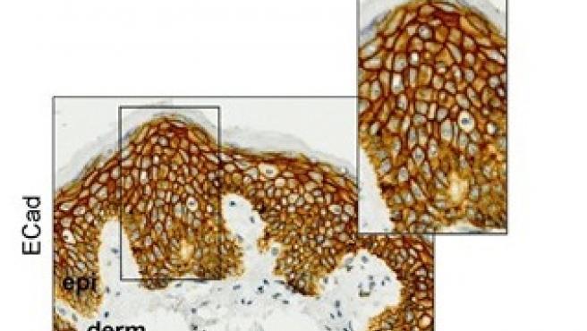 Análisis de inmunohistoquímica de E-caderina (ECad) y R-caderina (RCad) en muestras normales de piel obtenidos de pacientes con cáncer de mama antes del tratamiento con capecitabina