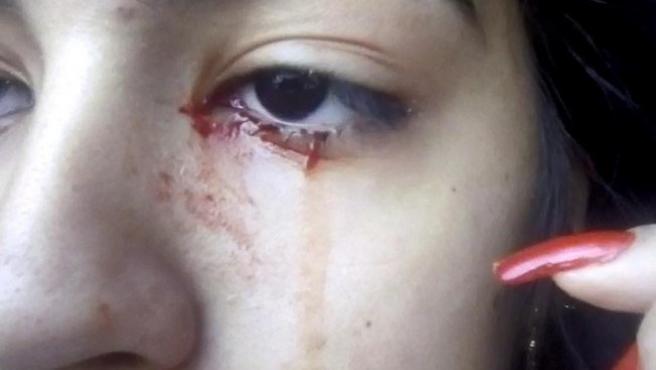Doris, la adolescente que llora sangre.
