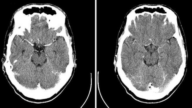 Immagine di riserva di due raggi X del cranio.