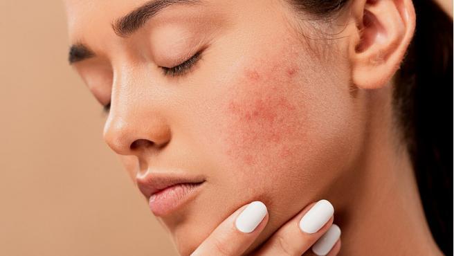 El uso de la mascarilla está provocando brotes de acné.