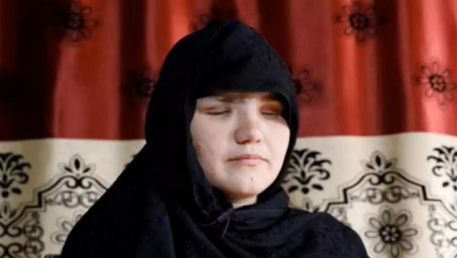 Khatera, la mujer atacada que ha quedado ciega.