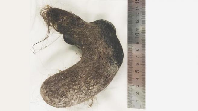La bola de pelo extraída del estómago de la menor.