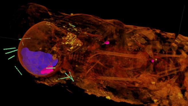 La difracción de rayos X muestra los dientes adultos de la momia y una masa de resina dentro del cráneo.