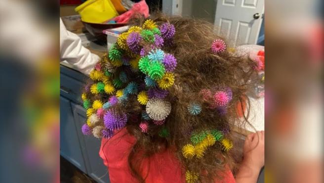La pequeña que se enganchó en el pelo casi 150 juguetes.