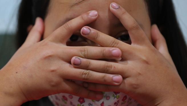 Arantza, una niña que padece Trombastenia de Glanzmann, una enfermedad rara que le provoca fuertes sangrados.