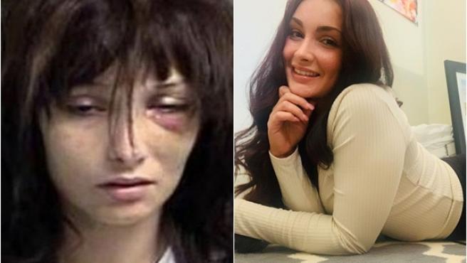 Madison McManus, antes y después.