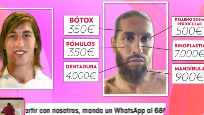 Las operaciones estéticas de Sergio Ramos.