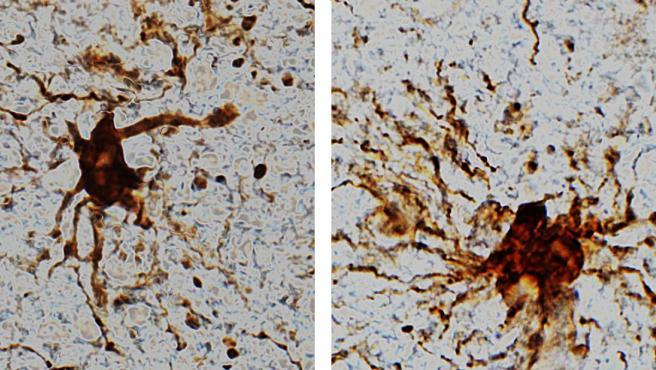 Células 'zombis' cobran vida después de la muerte del cerebro humano.