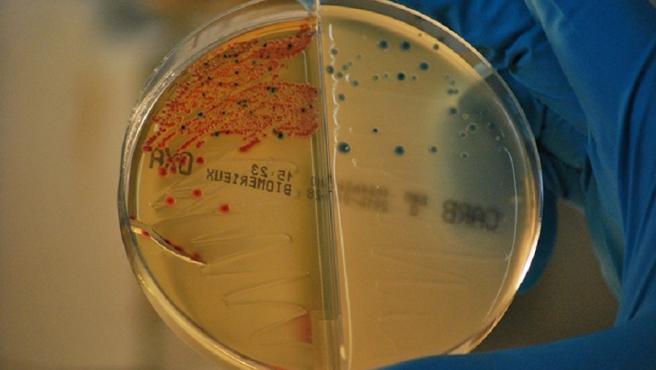 Bacterias resistentes a los antibióticos aisladas en el IRYCIS