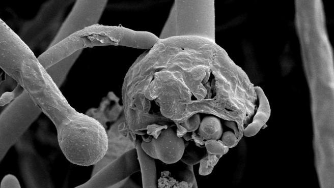 Imagen al microscopio de una infección de mucormicosis (conocido coloquialmente como 'hongo negro')