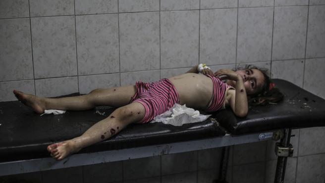 Niña palestina herida tras un ataque aéreo israelí en el hospital Al-Shifa, de Gaza.
