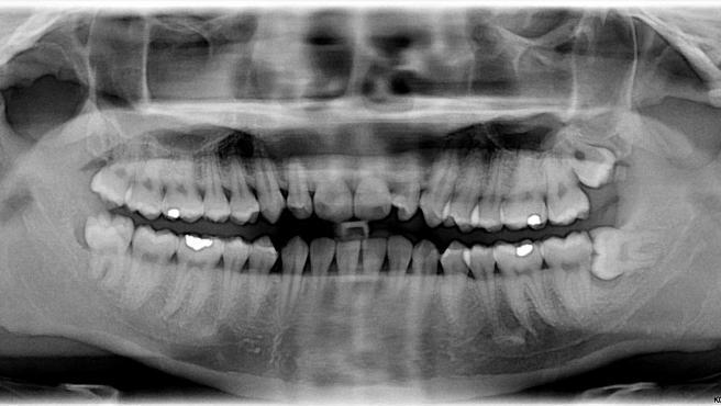Radiografía donde se ven las muelas del juicio.