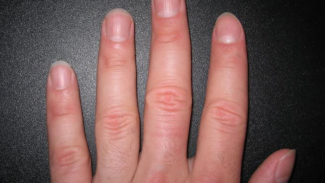 Imagen de las uñas de una mano izquierda.