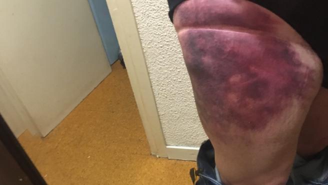 La pierna de Pep Cruz, amoratada.