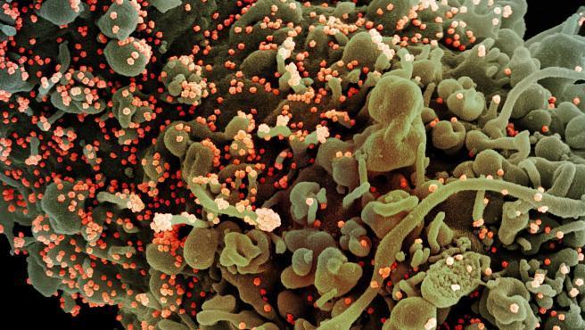 India admite el temor a una nueva ola de contagios y la razón la encontramos en una nueva variante de la ya conocida como Delta. La han llamado Delta Plus por su mayor capacidad de transmisión y resistencia a los tratamientos farmacológicos que ya se administran a pacientes leves de COVID-19.   La aparición de esta forma mutada de la variante Delta, presente ya en cuatro estados del país, pone en alerta a los científicos, que temen que la Delta Plus desplace, como ya ha pasado con otras cepas del coronavirus, a las demás variantes. Esta se encuentra ya presente en 92 países.