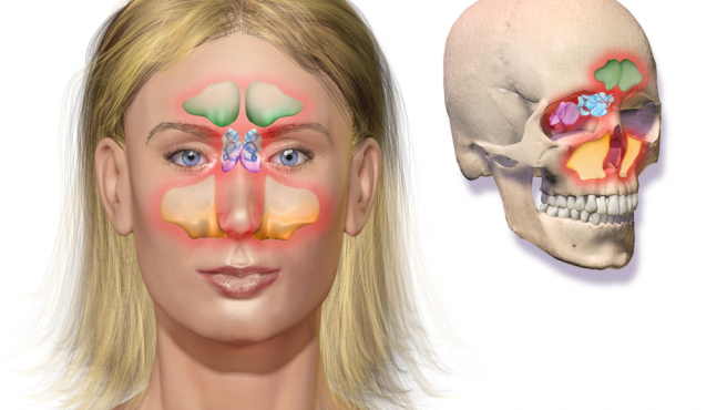 La sinusitis se divide en dos tipos: aguda y crónica.