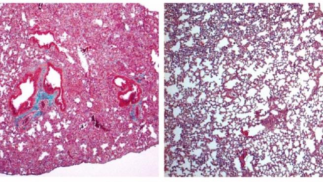 A la izquierda, pulmón de ratón con signos de fibrosis pulmonar grave. A la derecha, pulmón de ratón tratado con cortistatina, en el que el daño es mucho menor.
