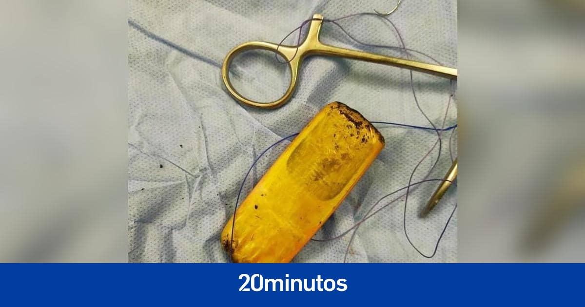 Un hombre vive con un móvil en el estómago durante seis meses