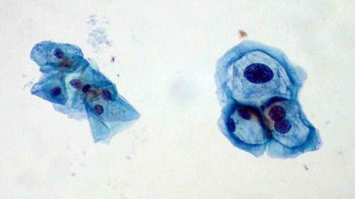 virus del papiloma ultima noticia cancer bucal adolescenti