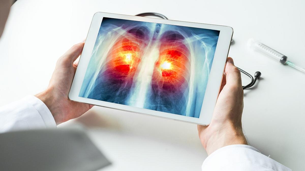 Investigadores del IBiS analizan el impacto de la inmunoterapia en pacientes con cáncer de pulmón