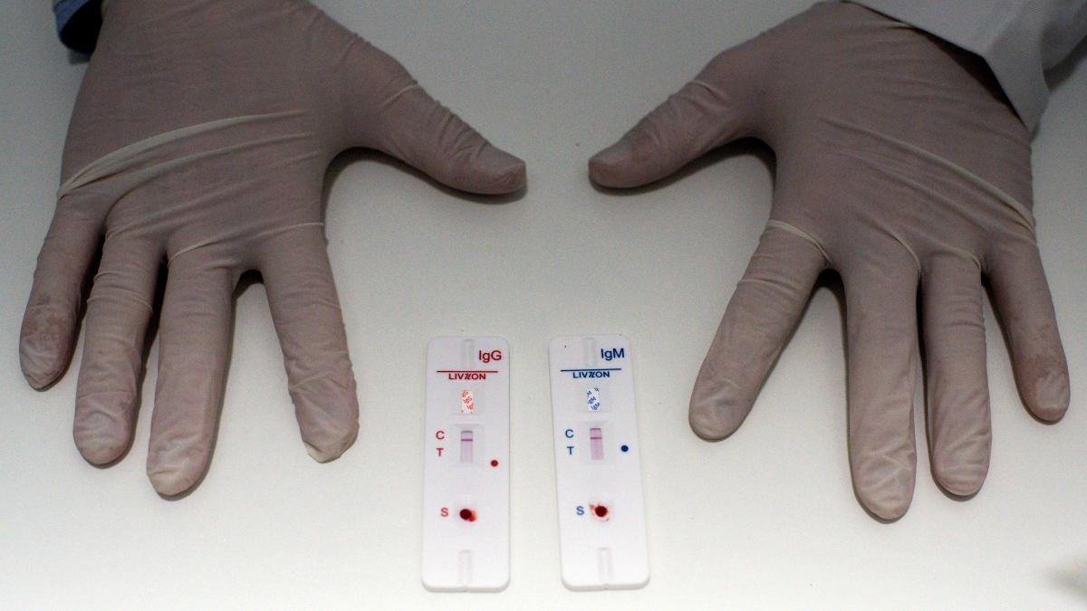 Lidl: así es el test de coronavirus 'low cost' que ha comenzado a vender