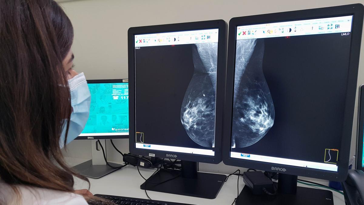 El ganglio linfático centinela: clave para saber hasta qué punto se ha propagado el cáncer de mama