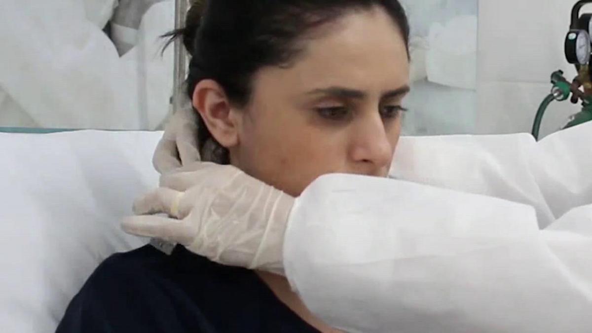 Vídeo: Un casco de respiración artificial reduce intubación en un 60 % en  Brasil